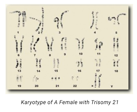 KARYOTYPE OF A FEMALE WITH TRISOMY 21 Graphic